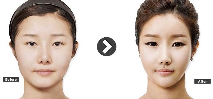 鼻の再手術