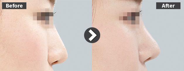 鼻先が低くなった鼻