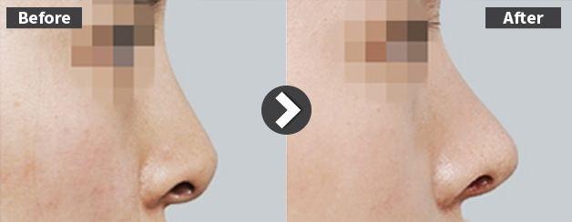 鼻先が変形した鼻