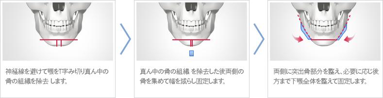 T字型 切骨術