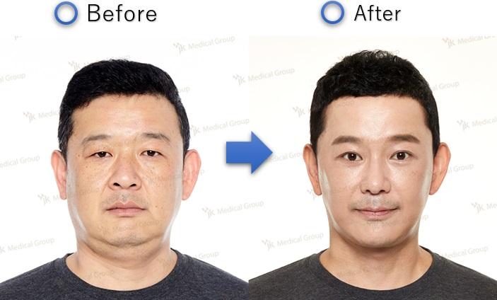 韓国の美容整形男性