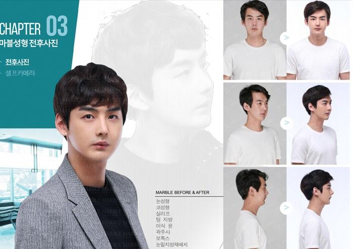 韓国の美容整形男性事例