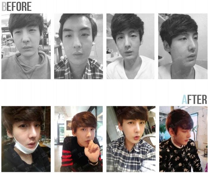 韓国の美容整形男性事例ビフォーアフター