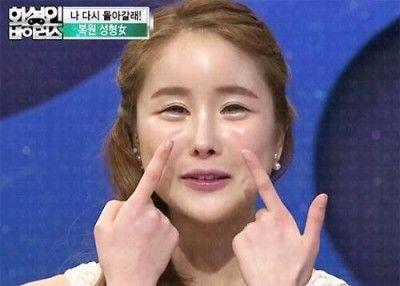 韓国美容整形失敗事例