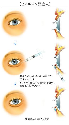 涙袋のヒアルロン酸