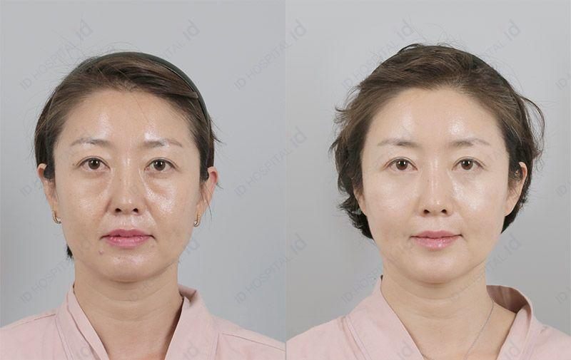 韓国整形目元たるみクマ