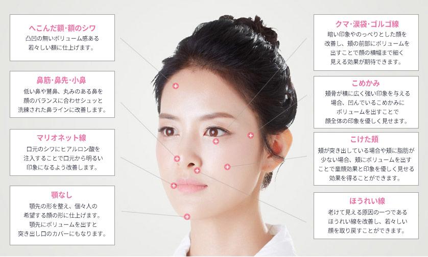 韓国美容整形ヒアルロン酸