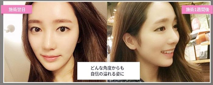 韓国美容ヒアルロン酸事例