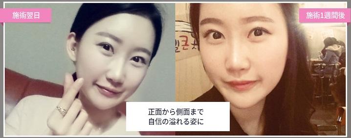 韓国美容整形ヒアルロン酸事例