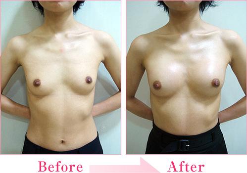 ヒアルロン酸注入豊胸手術