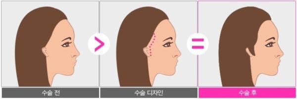 植毛生え際小顔韓国事例