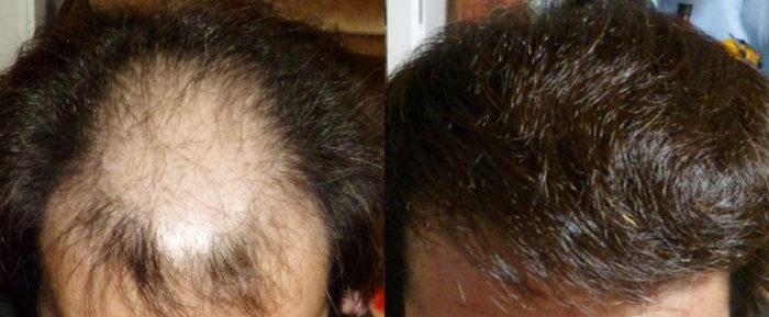 韓国植毛グローバルヘアー事例