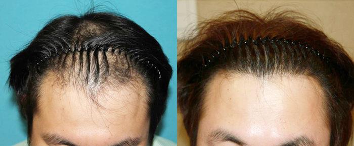 韓国植毛グローバルヘアー