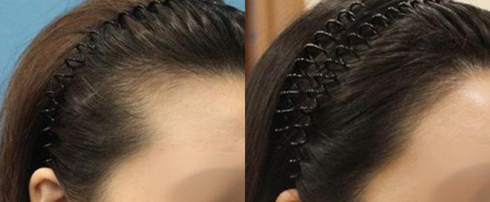 韓国植毛した事例女性グローバルヘアー