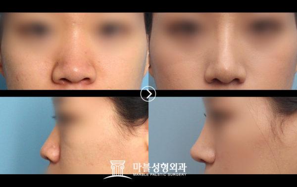 鼻筋を高くする整形事例