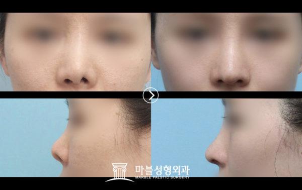 韓国鼻の整形