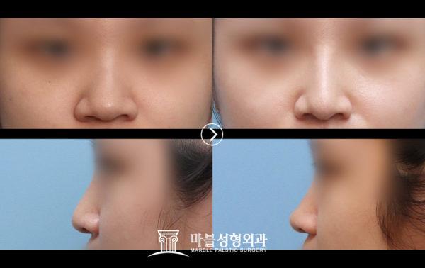 団子鼻整形