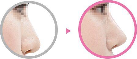 シークレット鼻整形