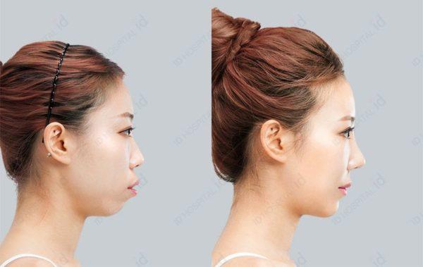 下顎の手術