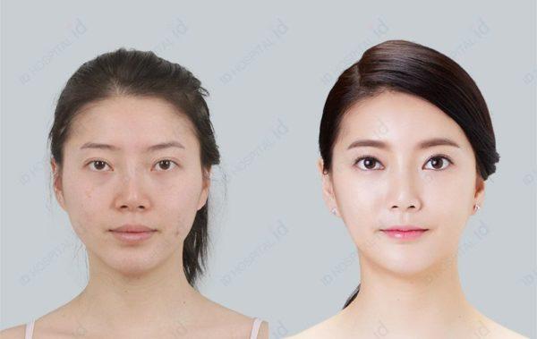 下顎手術事例
