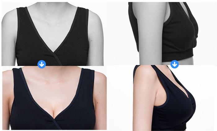 美容整形豊胸手術の事例