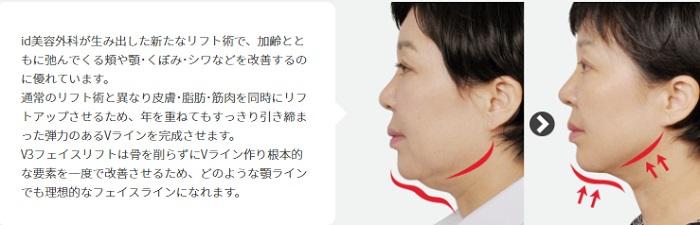 顎たるみ整形